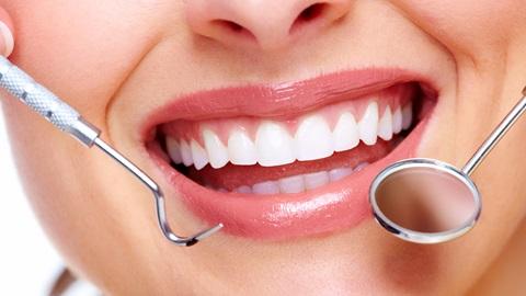 Trattamenti per sbiancare i denti